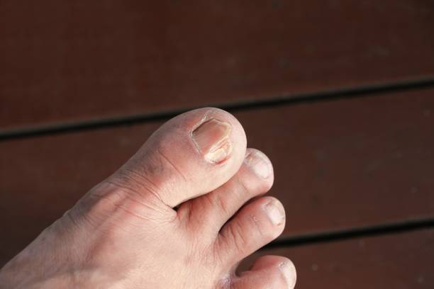 ingrown nail Big toe selective focus, broken toenail on  wood floor with copy space stock photo