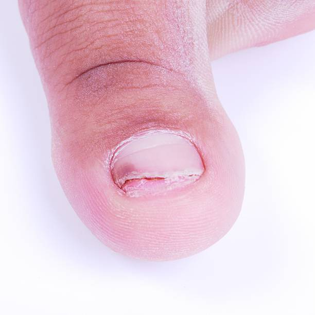 Royalty Free Ingrown Fingernail Pictures, Images and Stock Photos ...