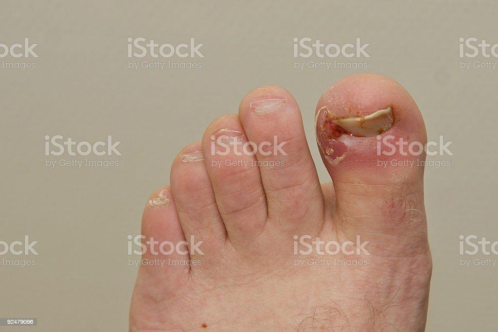 Ingrown toe nail royalty-free stock photo