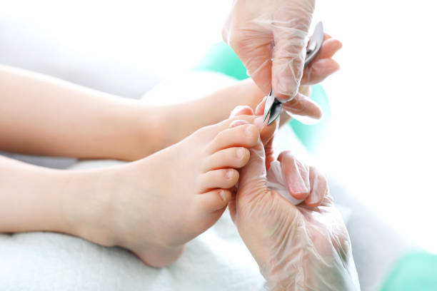 ingrown toenail - podiatry stock pictures, royalty-free photos & images