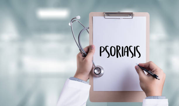 les injections et la seringue. diagnostic de psoriasis, concept médical. composition de médicaments - psoriasis photos et images de collection