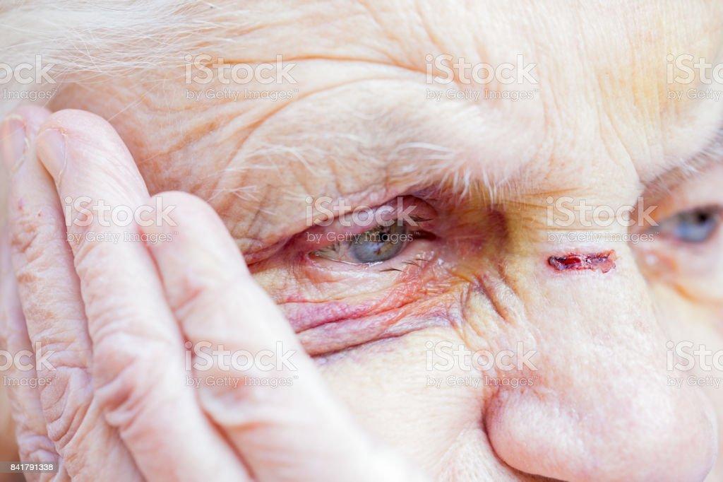 Injured elderly woman's eyes & face stock photo