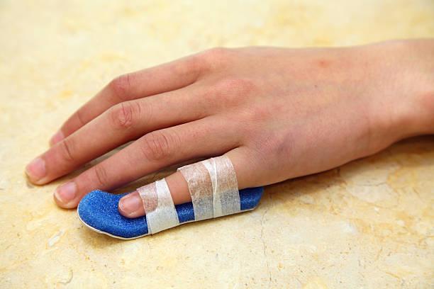 Injured Finger stock photo