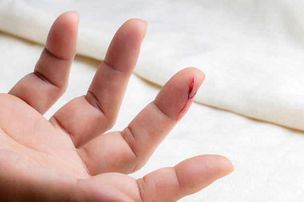 Injured finger stock photo