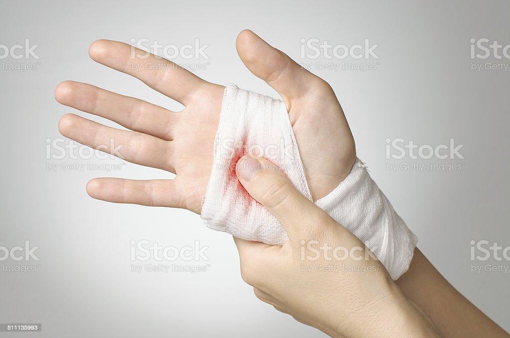 Verletzte hand mit bloody-bandage – Foto