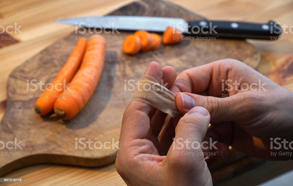 injured in the kitchen while cooking stock photo