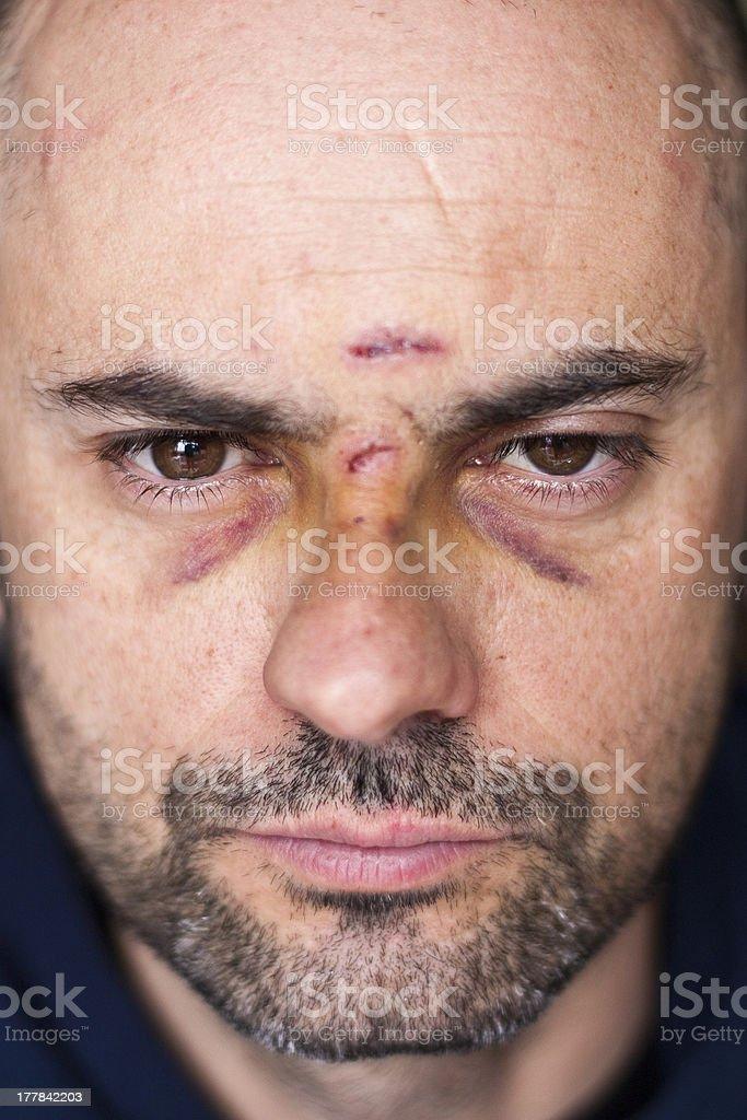 Injured man with black eyes stock photo