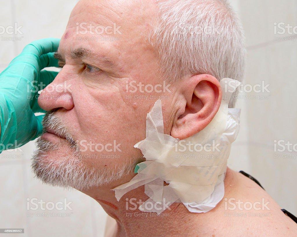 Injured old man stock photo