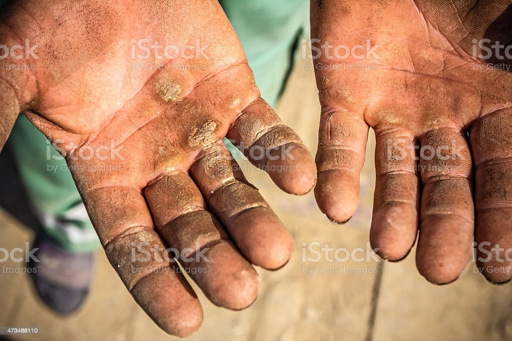 Injured open palms stock photo