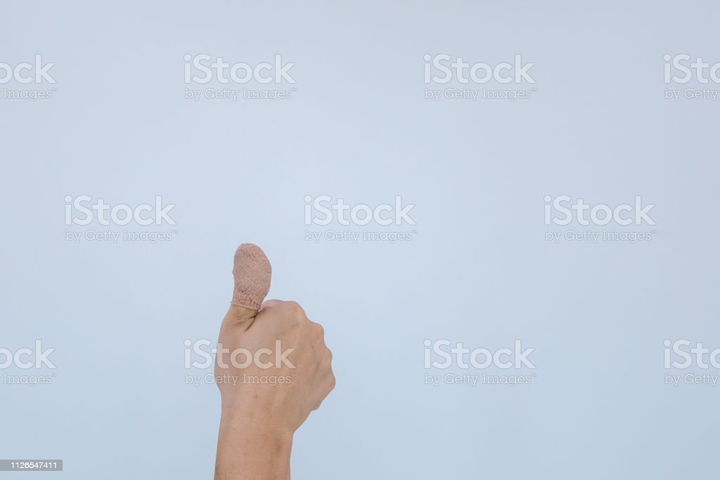 Verletzten schmerzhaften Finger mit weißen Verband. Hand wurde durch den Unfall und zeigt Daumen oben verletzt. – Foto