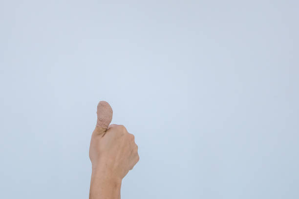 Injured painful finger with white bandage. Hand has been injured by the accident and showing thumb up. stock photo