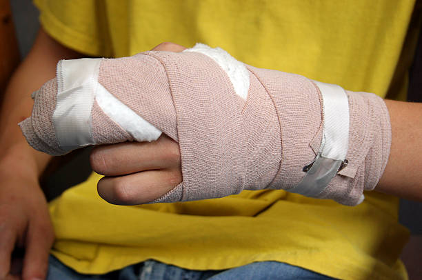 injured person shows off wrist cast - burning stock pictures, royalty-free photos & images