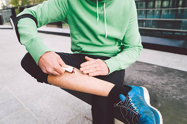blessé runner appliquant des onguents sur sa jambe - mi jambe photos et images de collection