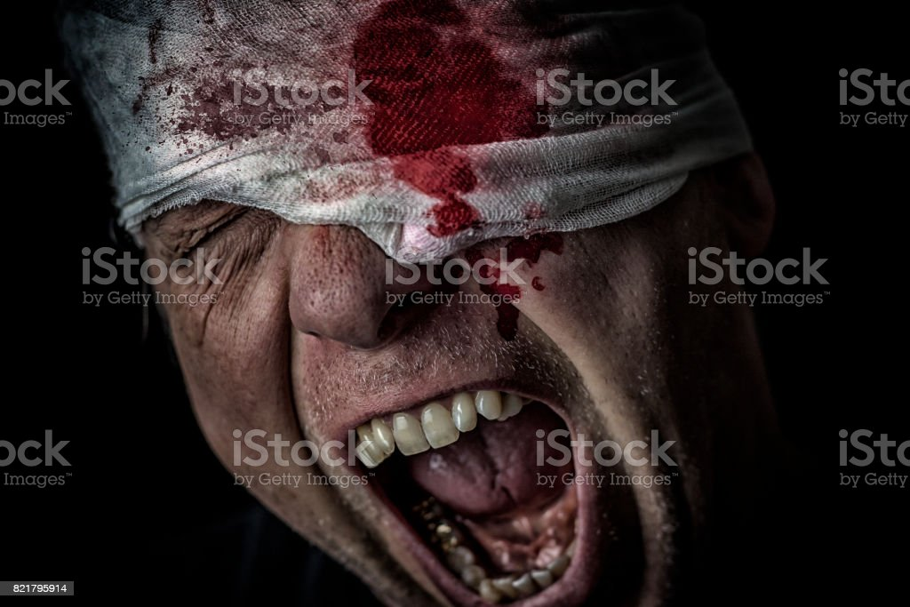 Injured soldier stock photo
