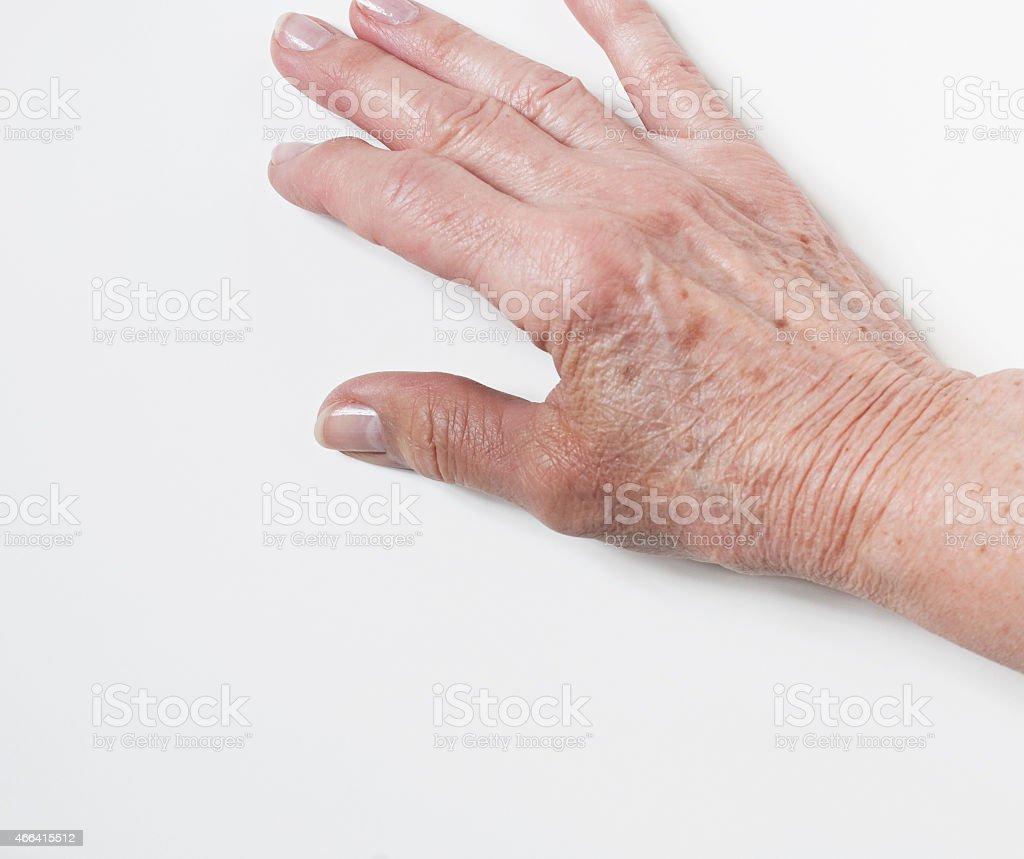 Injured Thumb of Elderly Hand stock photo