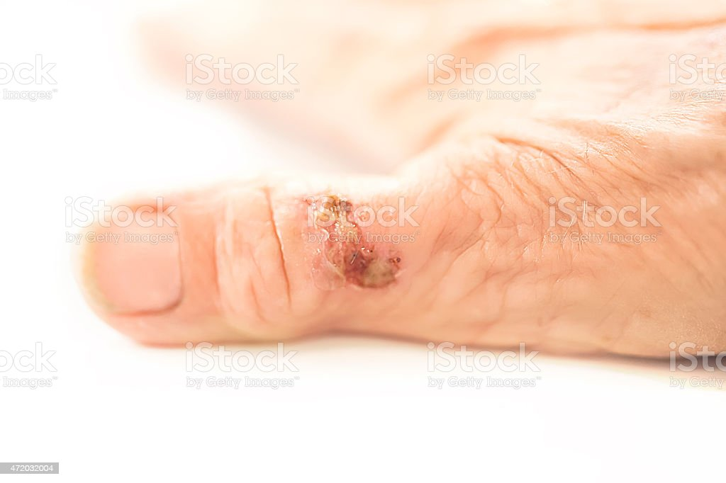 Injured thumb on a caucasian hand with clean fingernail stock photo