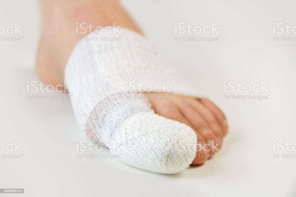 injured toe with bandages stock photo