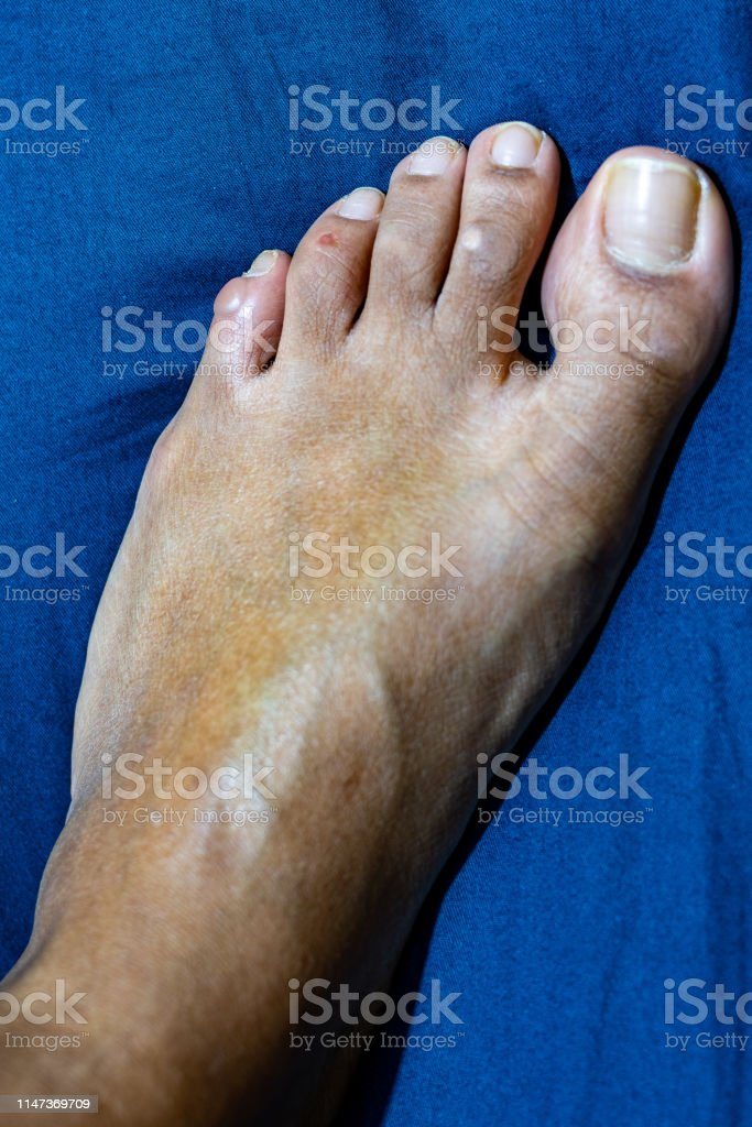 다섯 번째새끼 손가락 발가락에 액체 채워진 물집 소포 네번째
