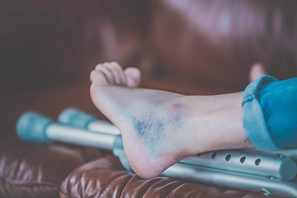injured woman walking with crutches - blauwe plek stockfoto's en -beelden