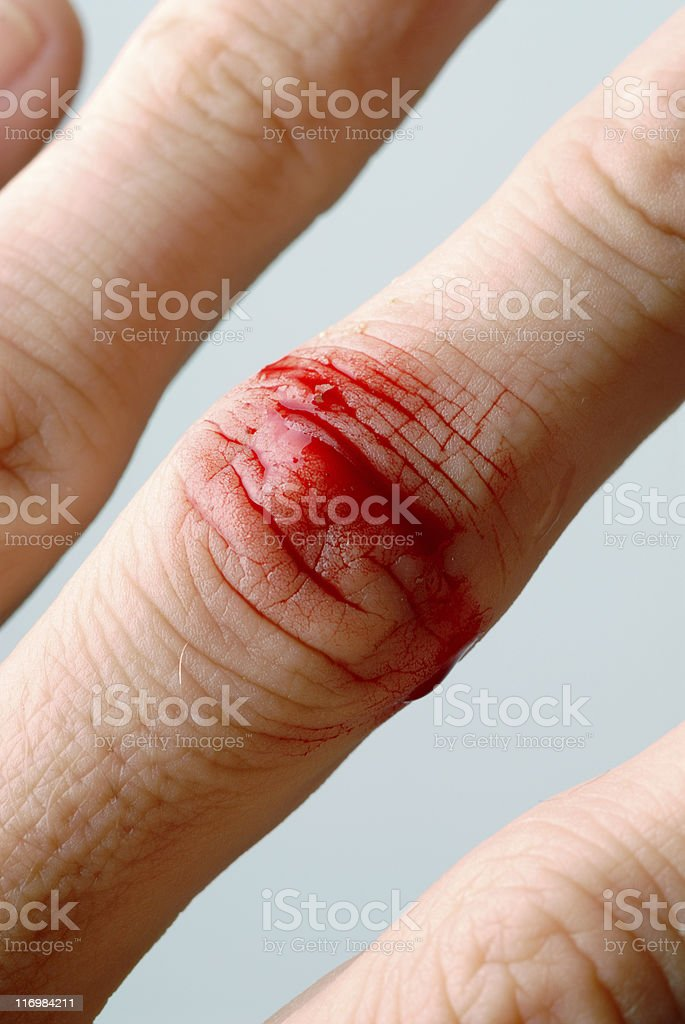 injury royalty-free stock photo