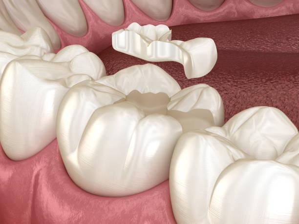 das inlay keramik krone fixierung über zahn. medizinisch genaue 3d abbildung des menschlichen zähnen behandlung - inlay zahn stock-fotos und bilder