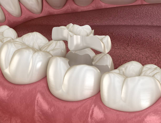 Inlay ceramic crown fixation over tooth. Medically accurate 3D illustration of human teeth treatment Inlay ceramic crown fixation over tooth. Medically accurate 3D illustration of human teeth treatment inlay stock pictures, royalty-free photos & images