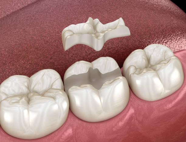 inlay keramik krone befestigung über zahn. medizinisch genaue 3d-illustration der behandlung menschlicher zähne - inlay zahn stock-fotos und bilder