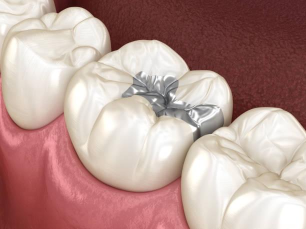 das inlay silber krone fixierung über zahn. medizinisch genaue 3d abbildung des menschlichen zähnen behandlung - inlay zahn stock-fotos und bilder