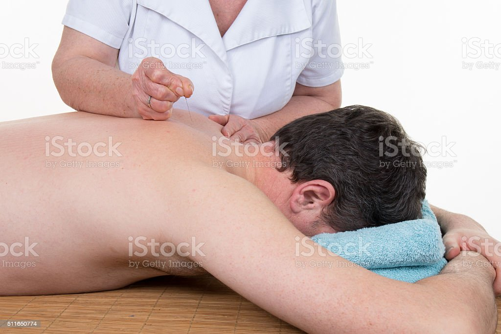 Inserting Acupuncture Needles at health center