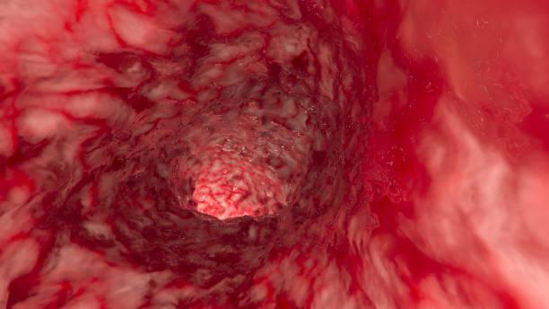 In der Arterie oder im Darm – Foto
