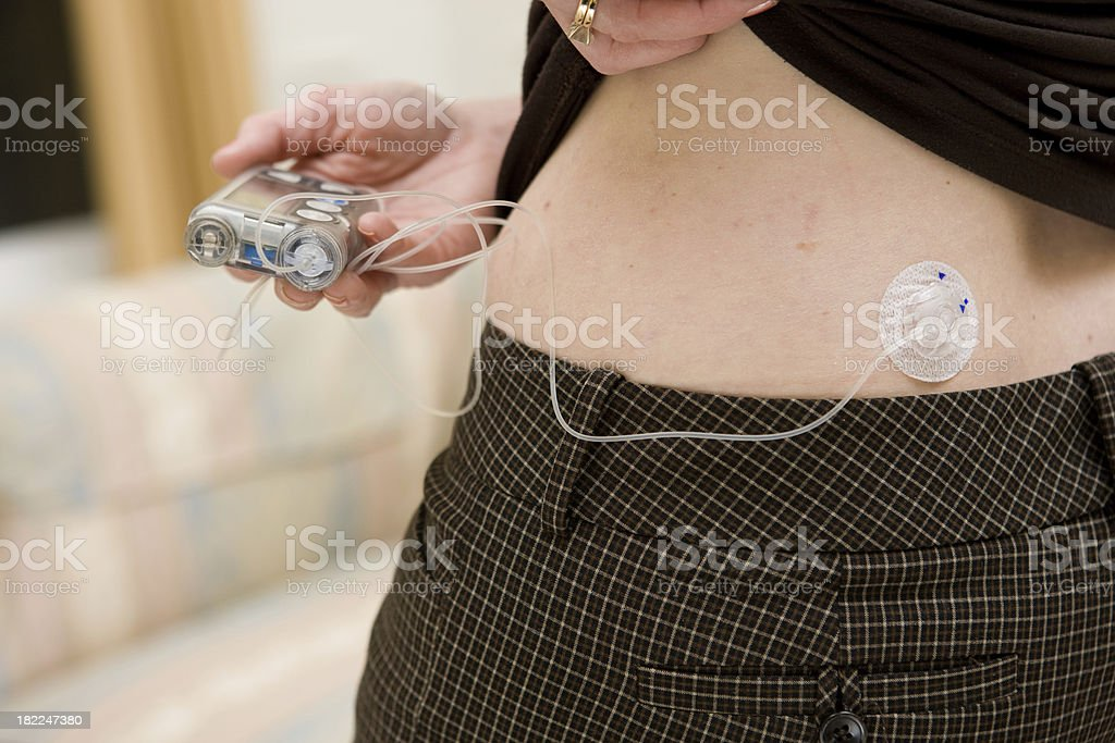 Insulin Infusion Site stock photo