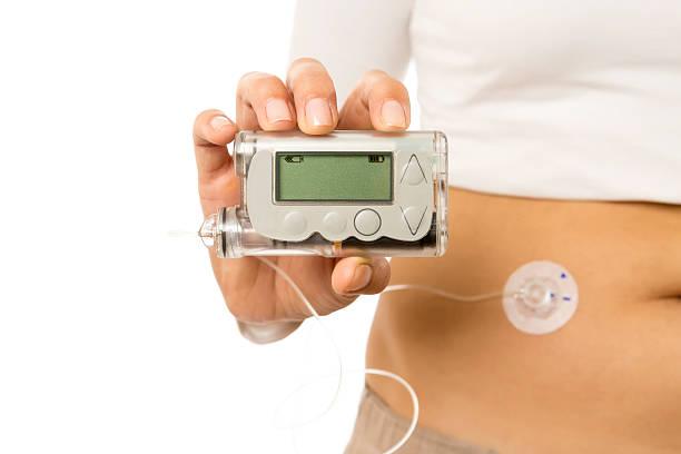 Pompe à insuline - Photo