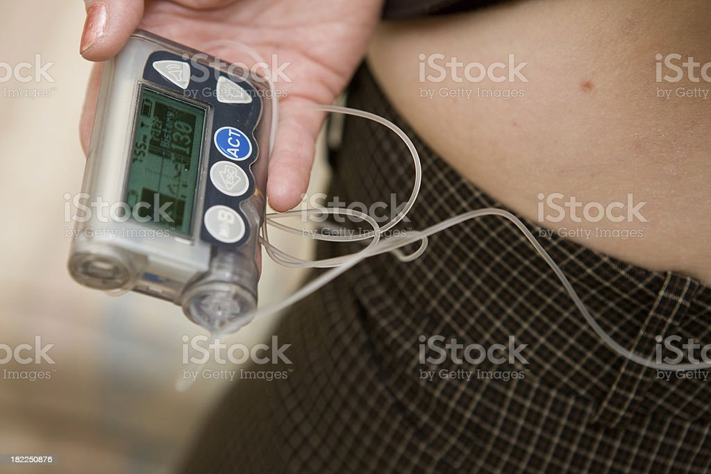 Insulin Pump With Tubing stock photo