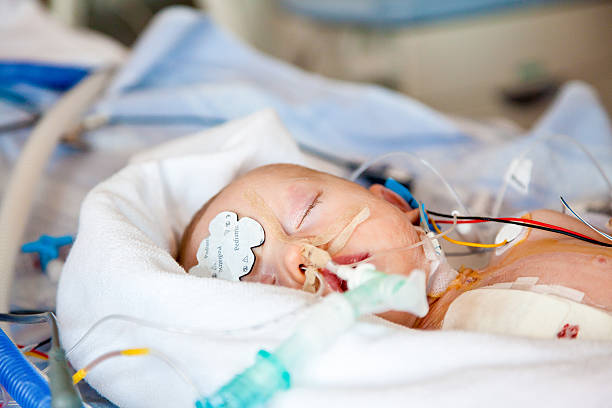 Intensive care. Child intensive care after heart surgery, anesthetic care. tranquilizing stock pictures, royalty-free photos & images