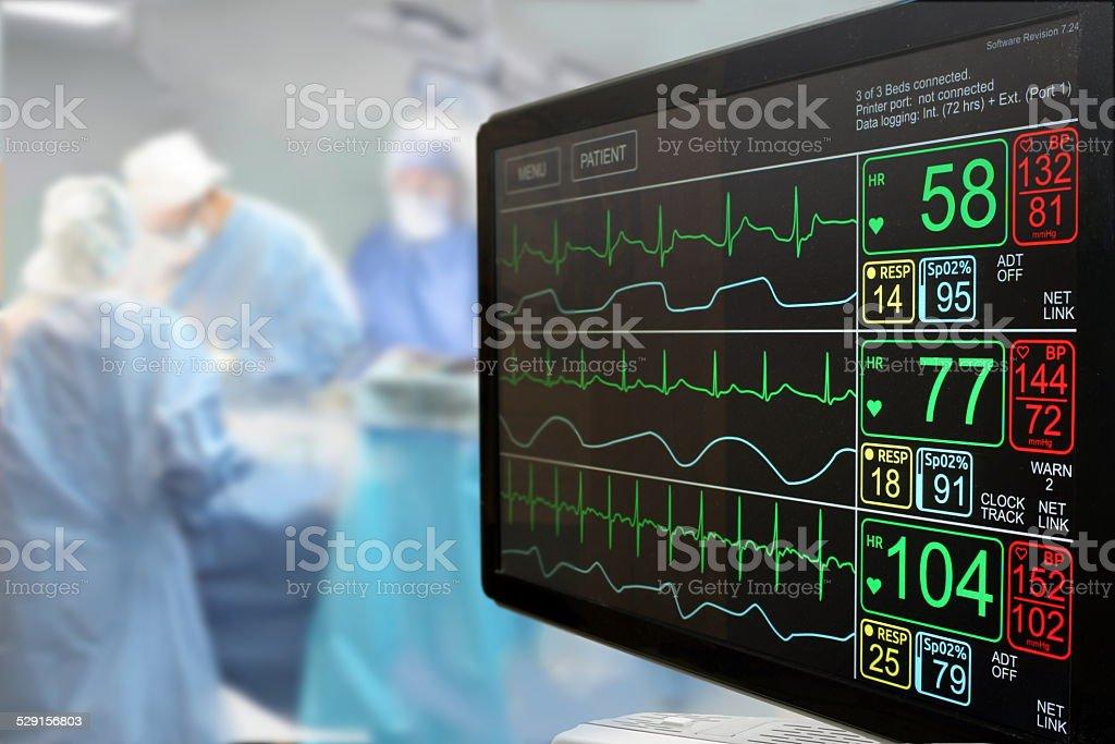 Unidade de Cuidados Intensivos monitorar e cirurgia - foto de acervo