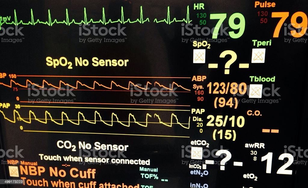 Intensive care unit monitor with ECG tracing