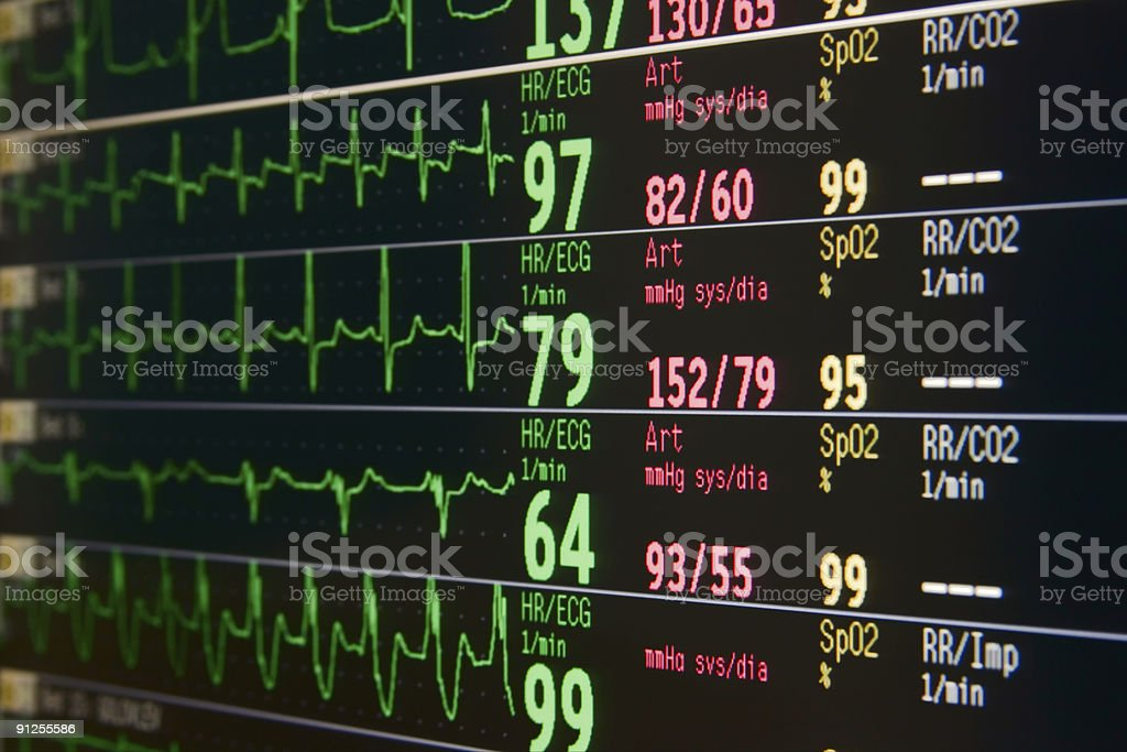 Intensive heart monitor displaying heart signals royalty-free stock photo