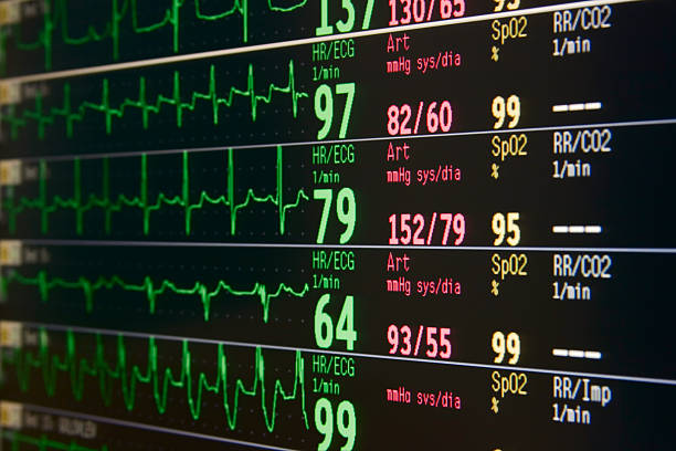 Intensive heart monitor displaying heart signals stock photo