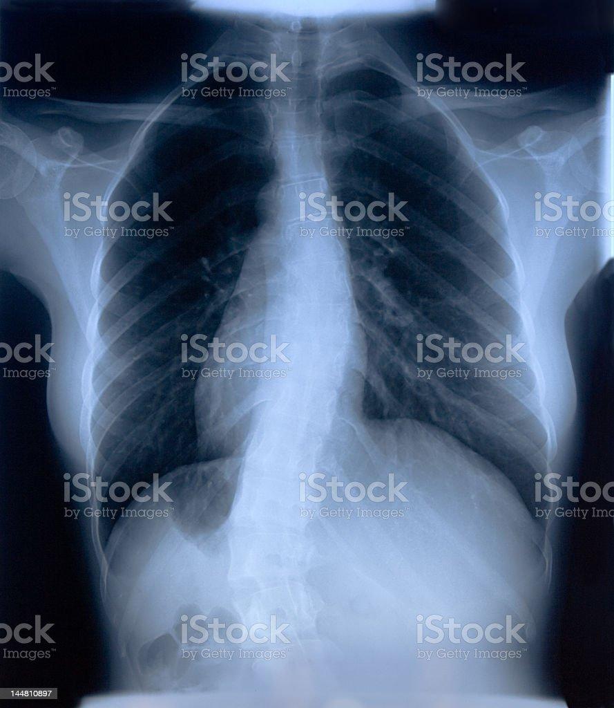 Interesting X-RAY film of female chest. royalty-free stock photo
