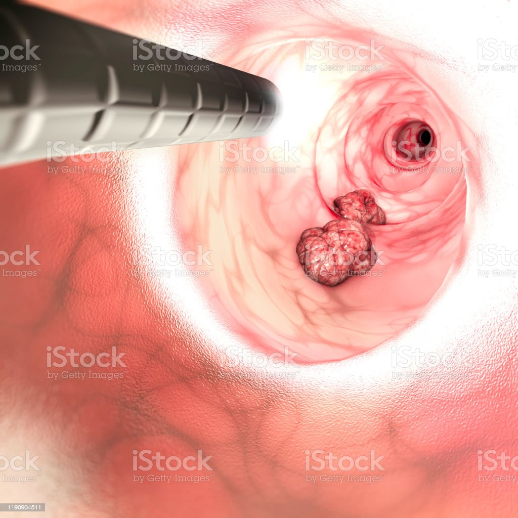 Internal View Of The Intestinal Walls Colorectal Cancer Bowel Cancer Colon Cancer Or Rectal Cancer Abnormal Growth Of Cells That Invade Or Spread To Other Parts Of The Body 3d Render Stock