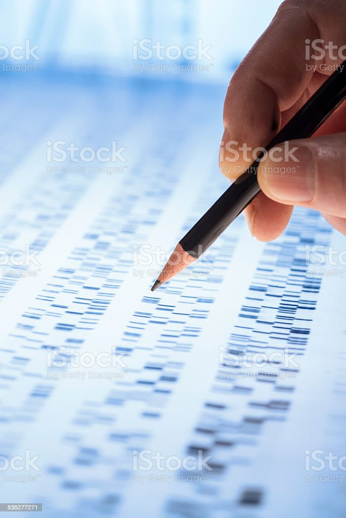 Interpreting DNA gel stock photo