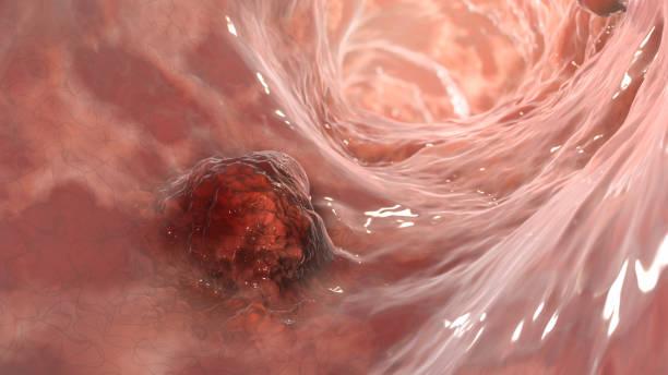 Intestinal carcinoma, colorectal cancer, bowel neoplasia, 3D illustration stock photo