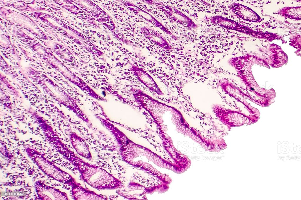 Intestinal metaplasia, light micrograph stock photo