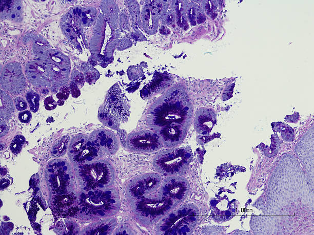 intestinal metaplasia of the esophagus- barrett's esophagus. - esophagus stock photos and pictures