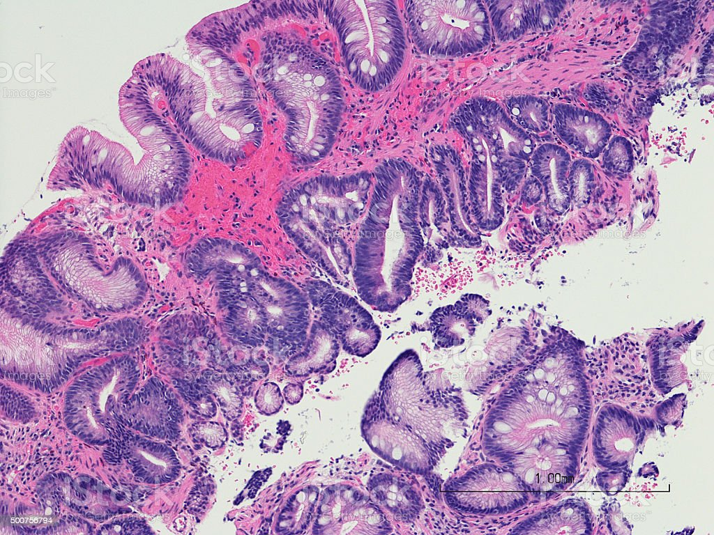 Intestinal metaplasia of the esophagus- Barrett's esophagus. stock photo