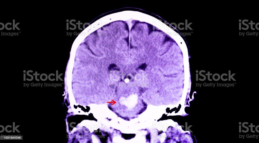 intracranial hemorrhage stock photo