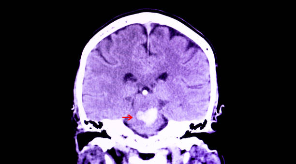 intracranial hemorrhage A CT scan of the brain of a patient with intracranial hemorrhage. The lesion is in the pons and extends to the cerebellum. brain stem stock pictures, royalty-free photos & images