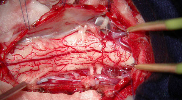 Intraoperative view of the human cervical spinal cord stock photo