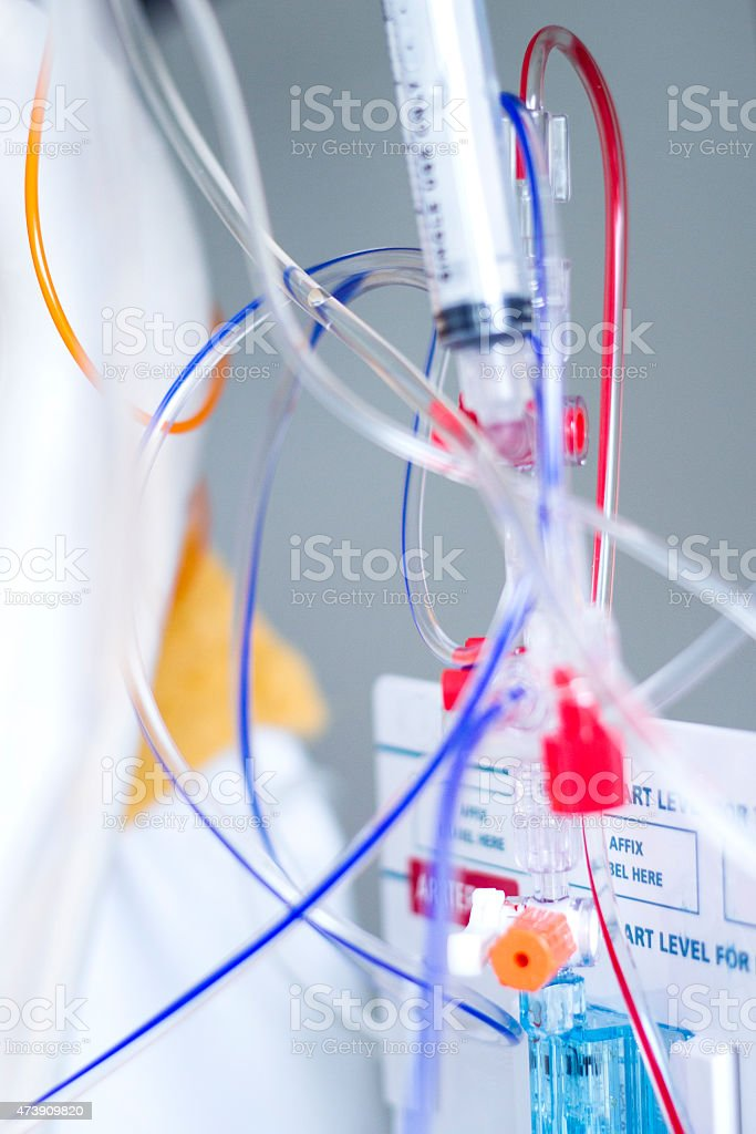 Intravenous drip and Haemodynamic Monitoring System in the ICU stock photo