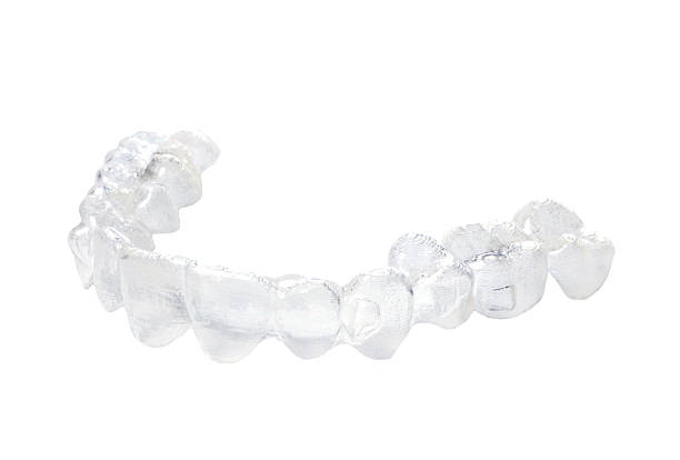 Unsichtbare Zahnspange – Foto